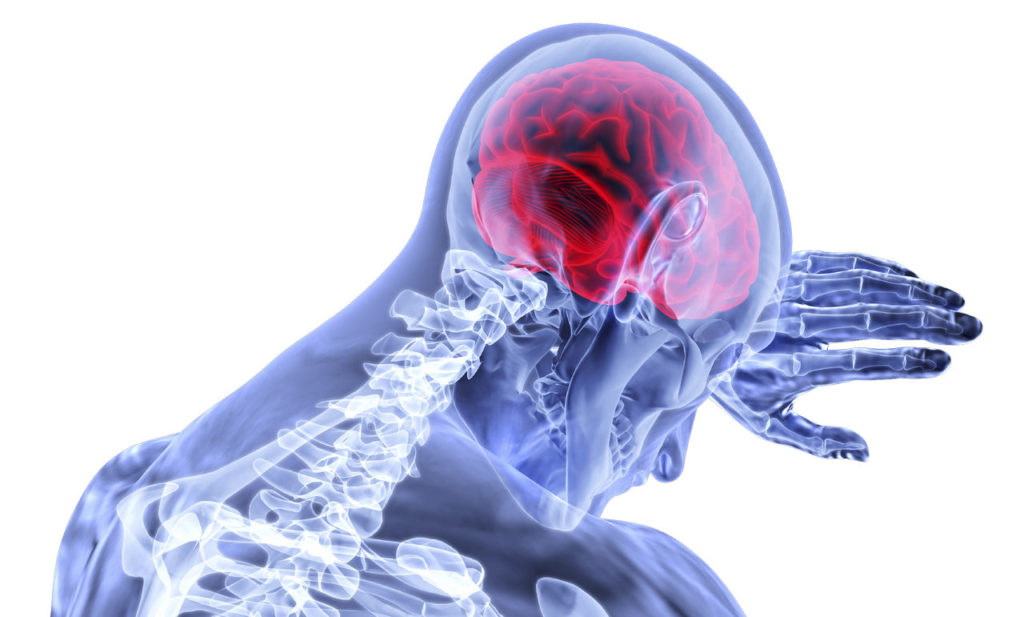 Krank Gehirn Nerven